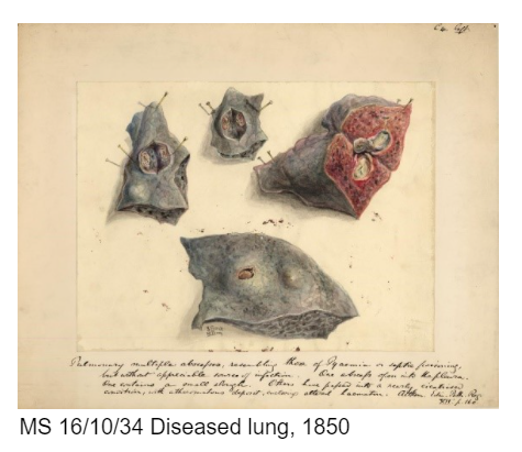 diseased lung illustrations 1850