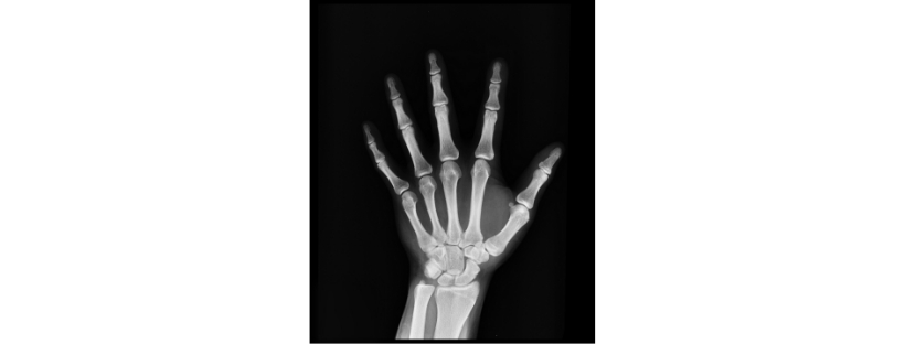 X-ray image of a hand